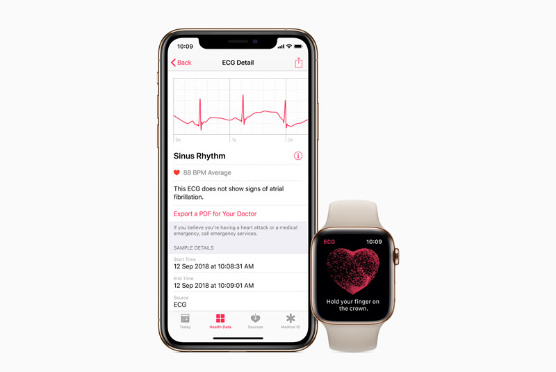 ECG-app Voor Apple Watch Series 4
